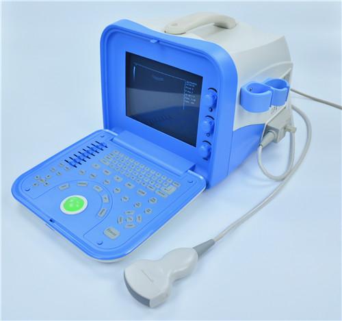 数字便携式超声诊断设备