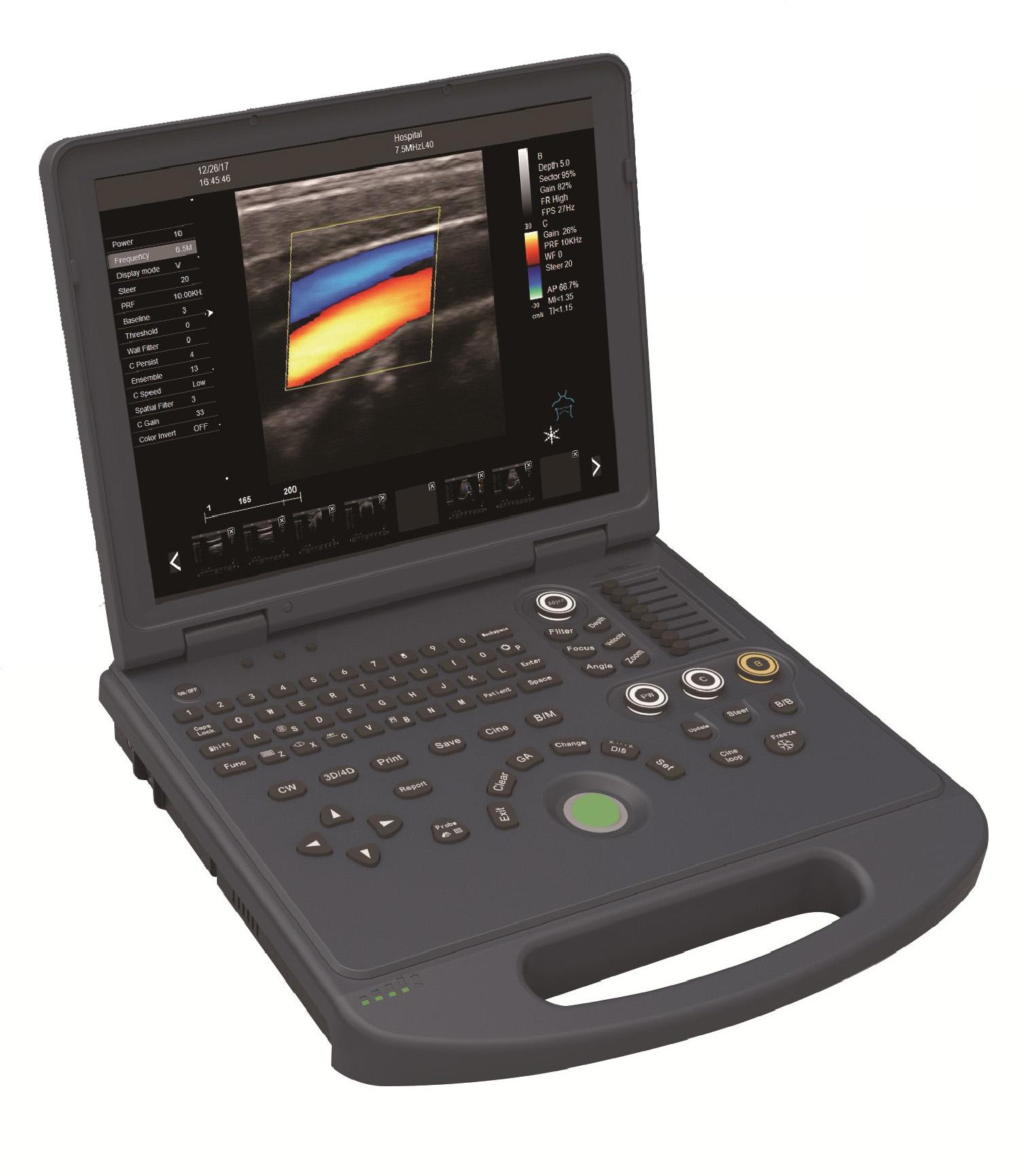笔记本电脑彩色多普勒超声诊断系统