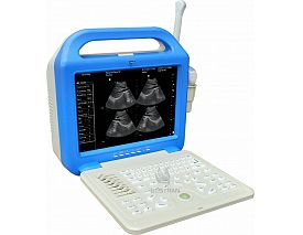 Digital Laptop Ultrasonic  Diagnosis  Equipment
